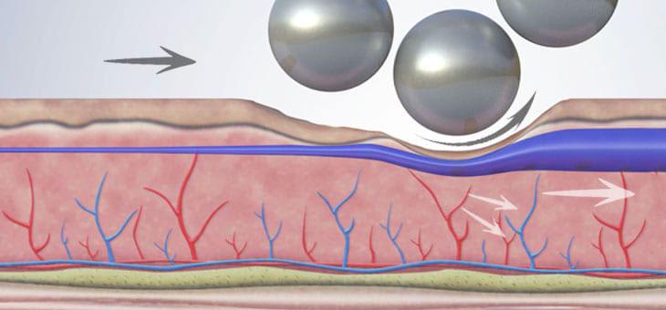 Azione drenante trattamento corpo